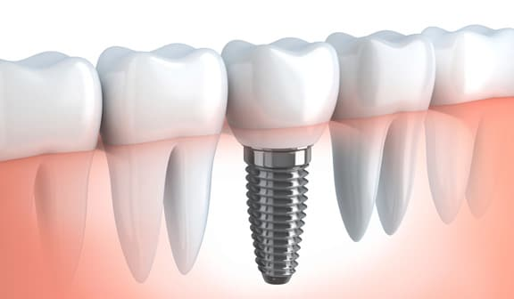 dental implant dentists Horsham
