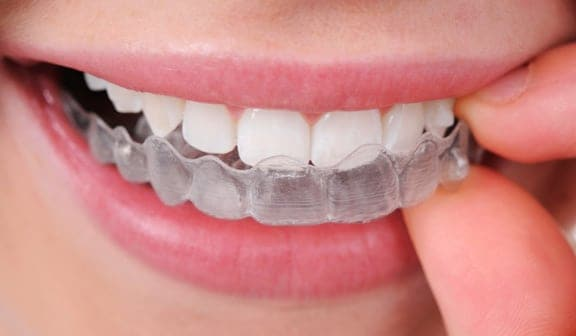 Invisalign dentists Ardmore