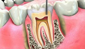 root canal specialist near me