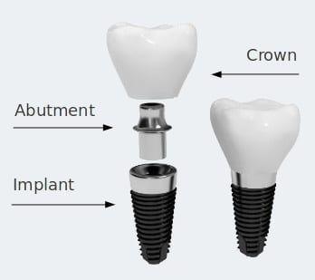 dental implants Oreland