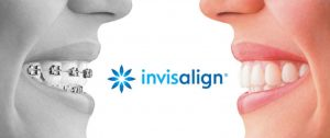 4 Invisalign Facts to Know