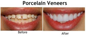 Cosmetic Veneers Jenkintown