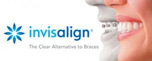 Why Invisalign is Better than Cheaper Alternatives